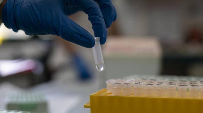 tamponi-coronavirus