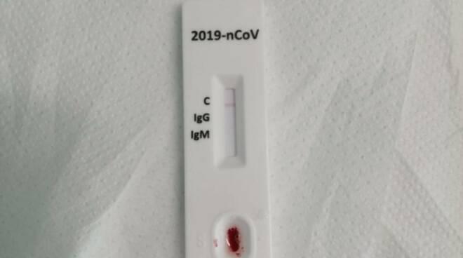 test sierologico covid-19